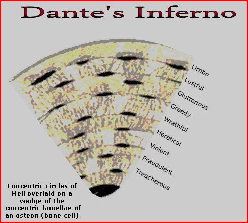 Hanson's Inferno | Bones Theory